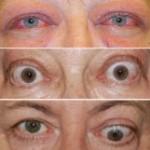 Grejvsova oftalmopatija