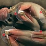 hipotireoza-bolovi u zglobovima